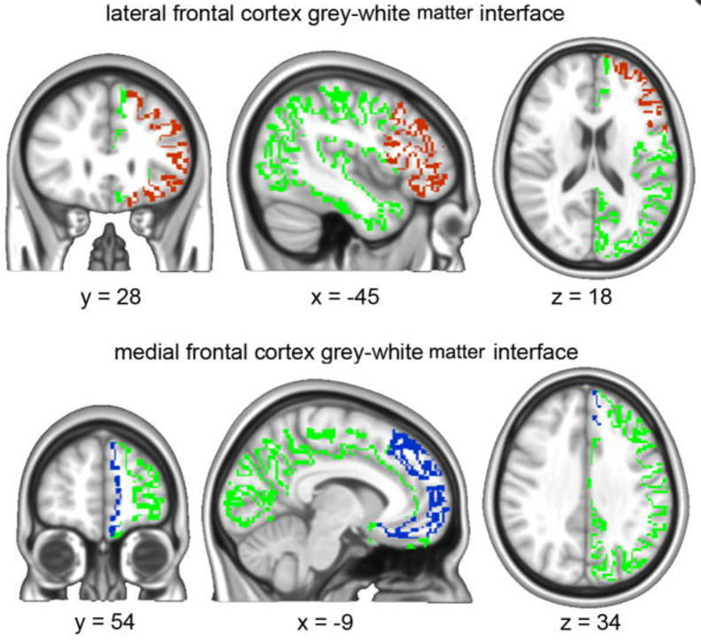 """2.Brain white matter may be hard-wired to predict who will get """"chronic"""" pain"""