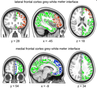 "2.Brain white matter may be hard-wired to predict who will get ""chronic"" pain"