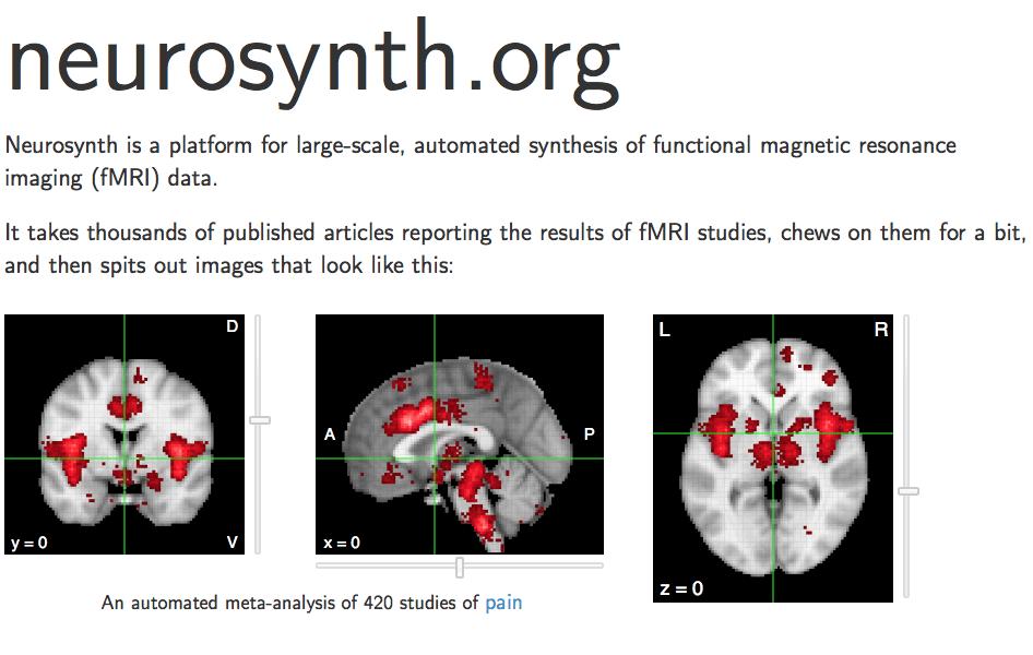 Neurosynth.org Automates 420 MRI Brain Images on: Pain.